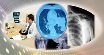 Reporting software / analysis / medical / medical imaging Radiology Regular Birlamedisoft