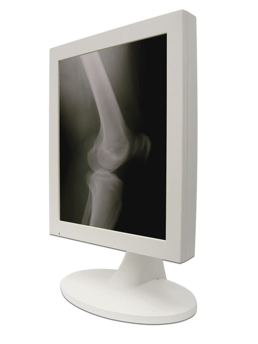 """Monochrome display / LCD / medical 19.1"""" 