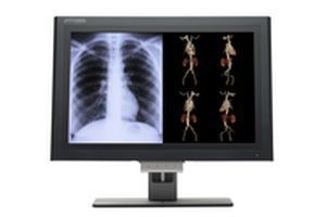 """LCD display / medical 30"""" 