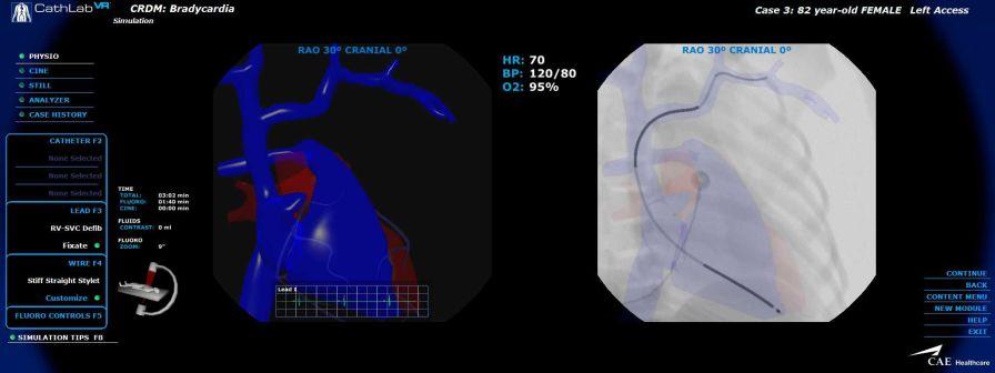 Cardiovascular catheterization simulator CathLabVR CAE Healthcare