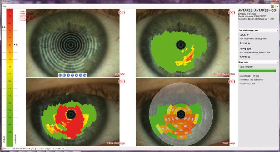 Corneal topograph (ophthalmic examination) bon ANTARES bon Optic Vertriebsgesellschaft