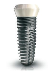 Cylindrical conical dental implant / titanium / one-stage / self-tapping Smilea Conic BIOTECH INTERNATIONAL