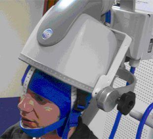 Transcranial magnetic stimulation unit Brainsway
