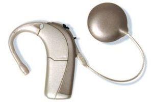 Behind the ear processor cochlear implant AURIA Advanced Bionics