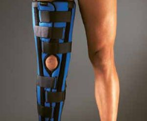 Knee splint (orthopedic immobilization) K100, K100 AG / ORMIHL ALTEOR