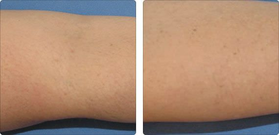Hair removal laser / diode / alexandrite / on trolley Soprano ICE Alma Lasers