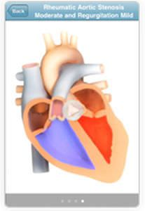 Training iOS application / auscultation SoundBuilder 3M Littmann Stethoscopes