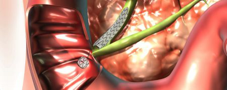 Biliary stent BIS Allium Medical Solutions