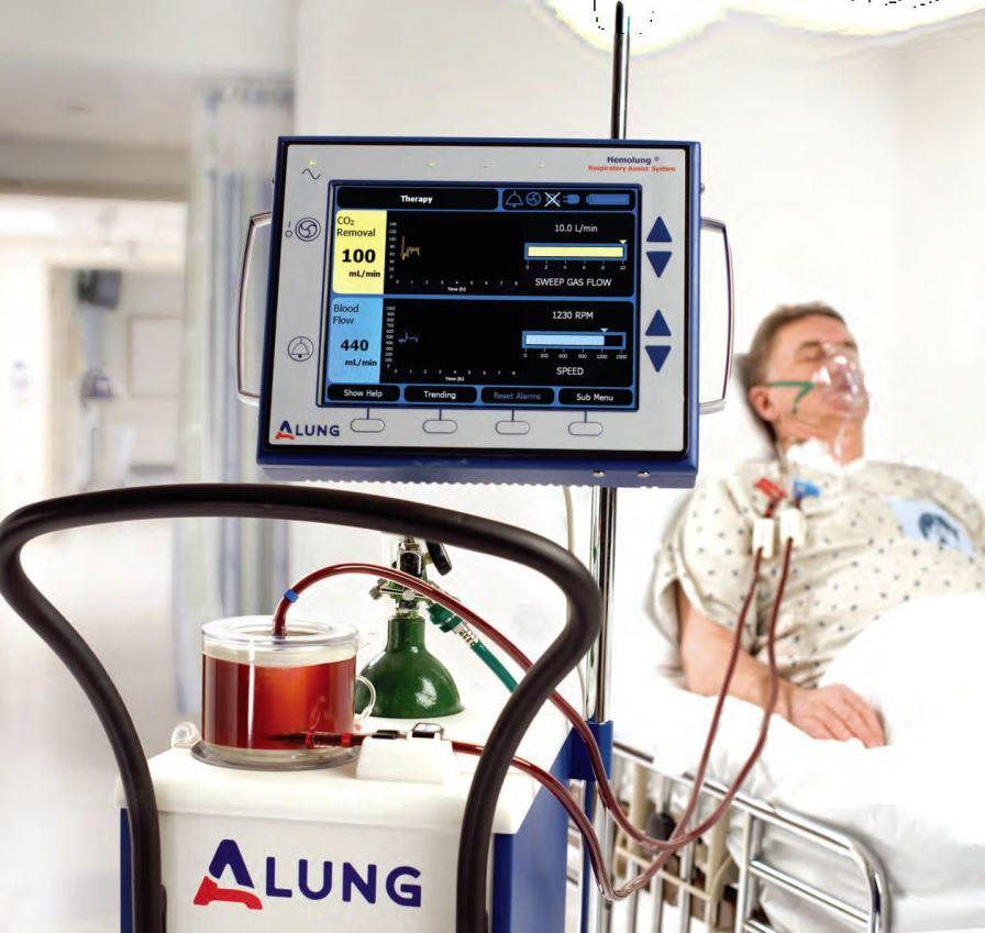 Respiratory dialysis machine Hemolung® RAS Alung Technologies