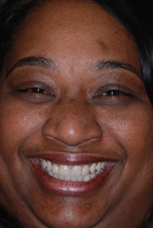 After photo of Pam S. - Crowns