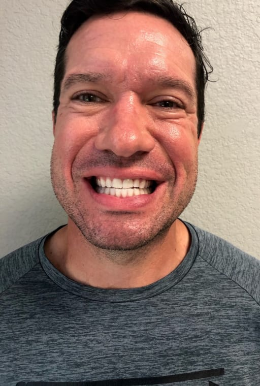 After photo of Travis C. - Teeth Whitening