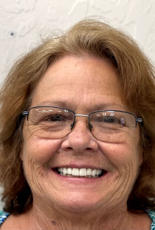 After photo of Alma - Smile Makeover! Crowns and Veneers.