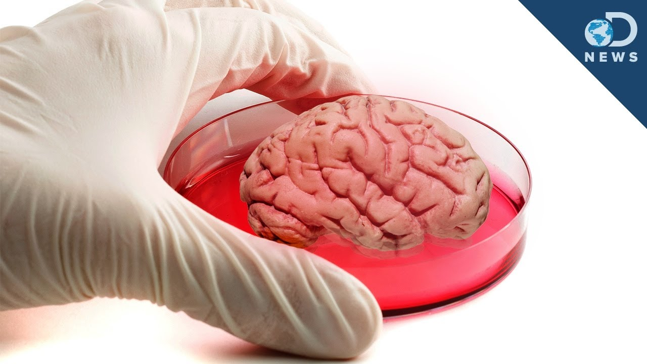 Stem Cell Therapy - Brain Tissue