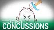 Brain - Concussion