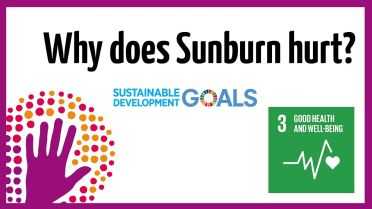 Sunburn - Signs and Symptoms