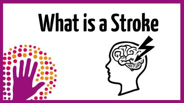 Stroke - Facts