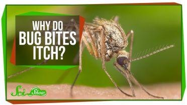 Mosquito - Bites