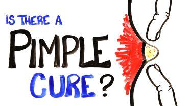 Pimple