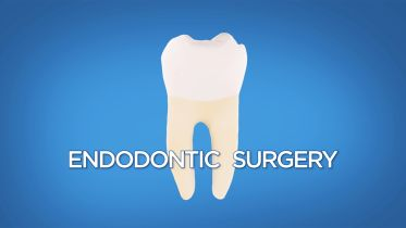 Root Canal Surgery