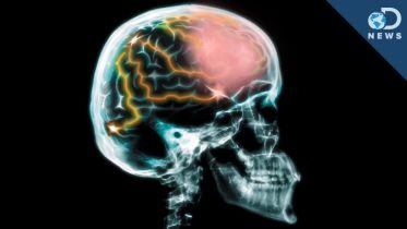 Brain - Capacity