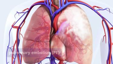 Deep Vein Thrombosis - Complications