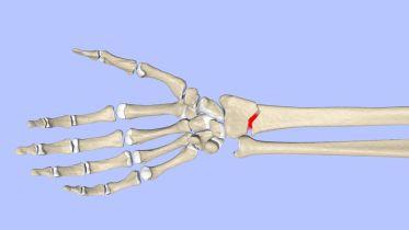 Bone Fracture - Healing