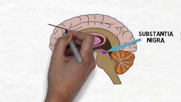 Brain - Substantia Nigra