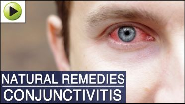 Conjunctivitis - Treatment
