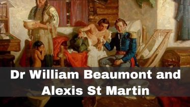 William Beaumont - Experiments with St. Martin