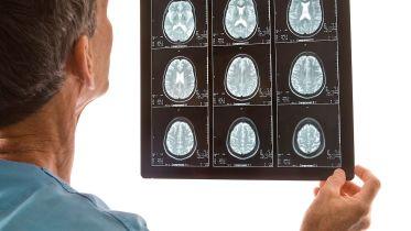 Epilepsy - Symptoms