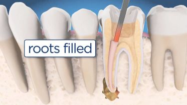 Root Canal Retreatment