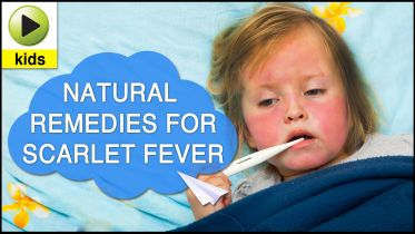 Scarlet Fever - Treatment