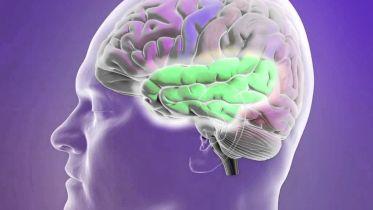 Epileptic Seizure - Types