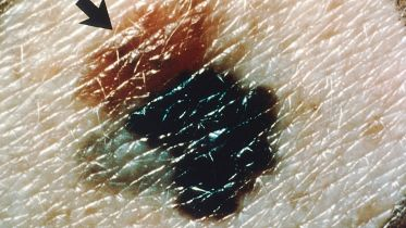 Melanoma - Signs and Symptoms