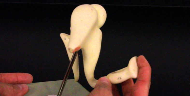 Ear Auditory Ossicles Check123 Video Encyclopedia