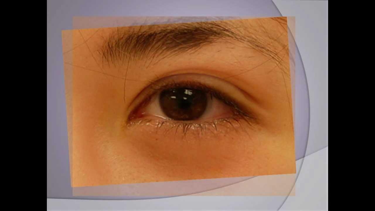 Ptosis - Treatment