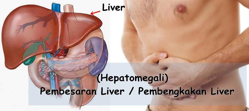 nama obat liver di apotik