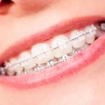 Dr Lemya Labraoui, Dentiste, Orthodontiste, Tizi Ouzou