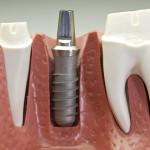 Dr Mohamed Haddad, Dentist, Bizerte