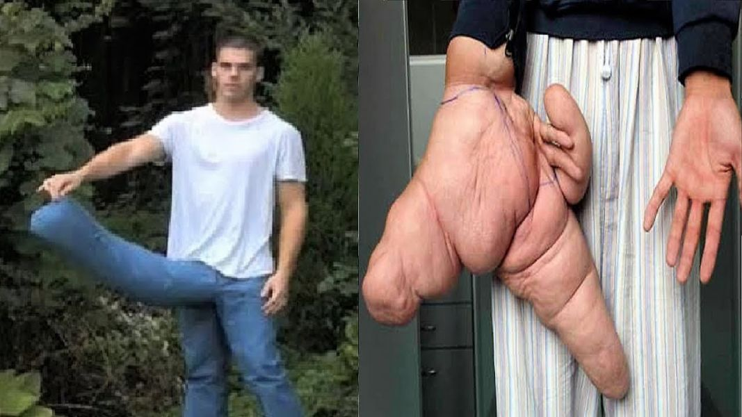 Top 10 People Have The Biggest Body Parts In The World