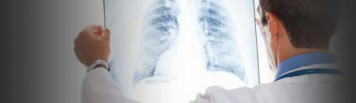 Lung Cancer Lawsuits