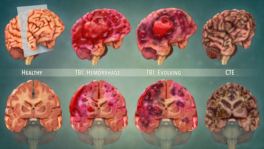 The Short & Long Term Effects of TBI and CTE in Full ...