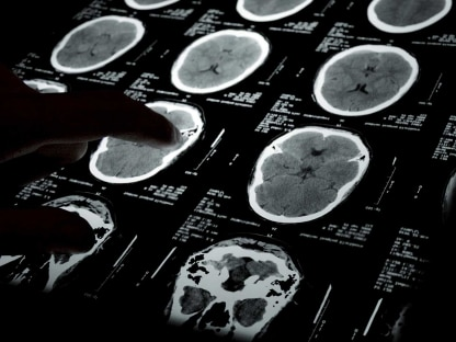 $20 Million Settlement Reached In Man's Brain Injury Case
