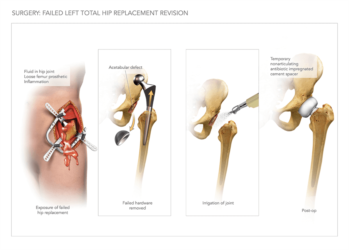 Total Hip Replacement Surgery | High Impact® Visual