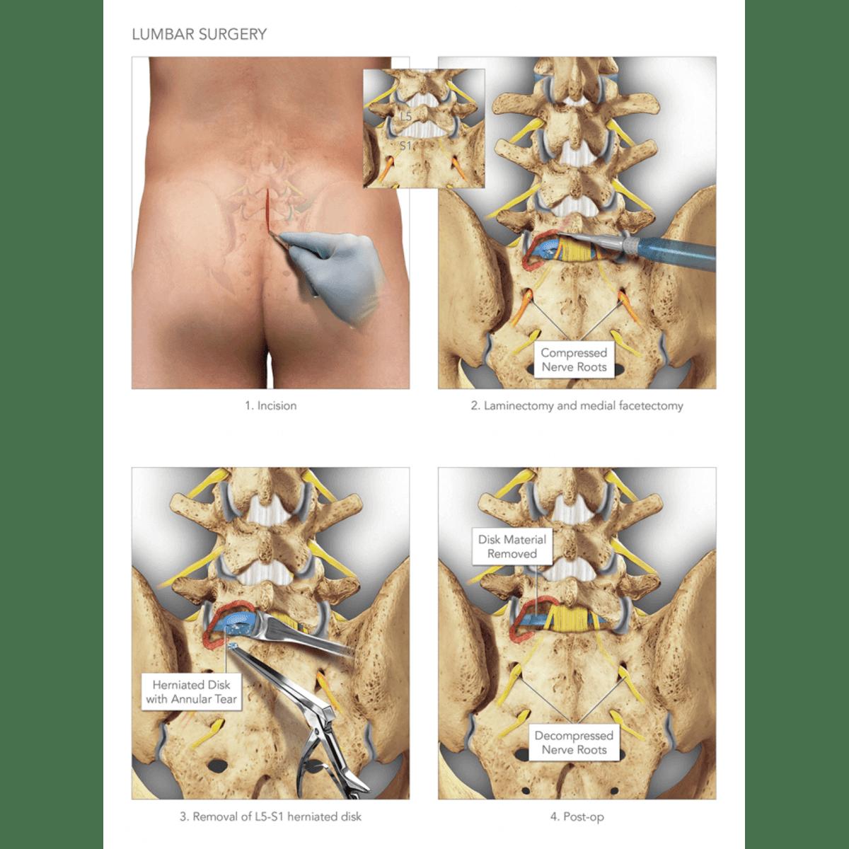 Normal Vs  Injured Lumbar Spine | High Impact® Visual