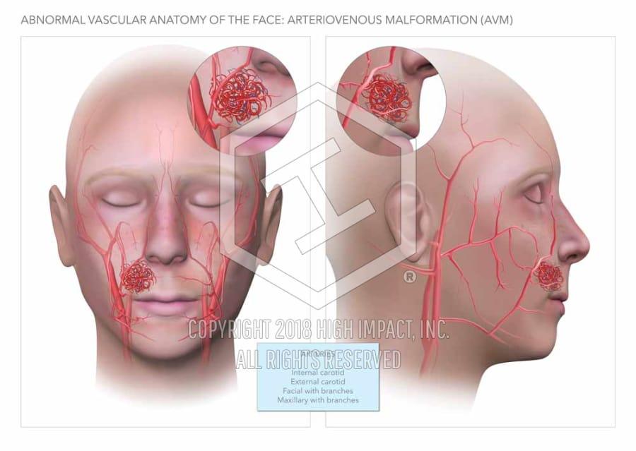 1 97m verdict arteriovenous malformation malpractice high impact