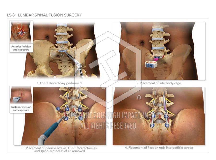 175m Verdict Illustrating Herniated Discs And Surgeries On Lumbar