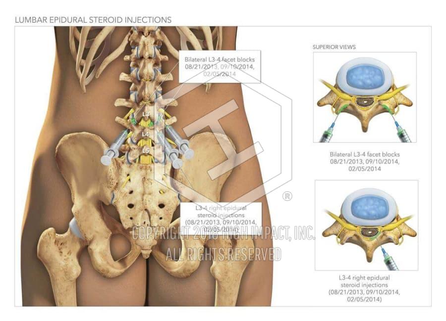 $500K Verdict: Illustrated Spine Injuries Overturn Underestimation ...