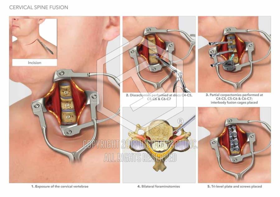364m Verdict Illustrating Mvc Spinal Injuries High Impact