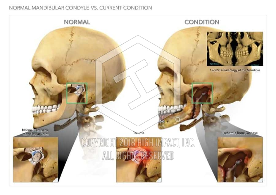 $17.4M Verdict Showing Facial Fractures and Bone Disease | High ...